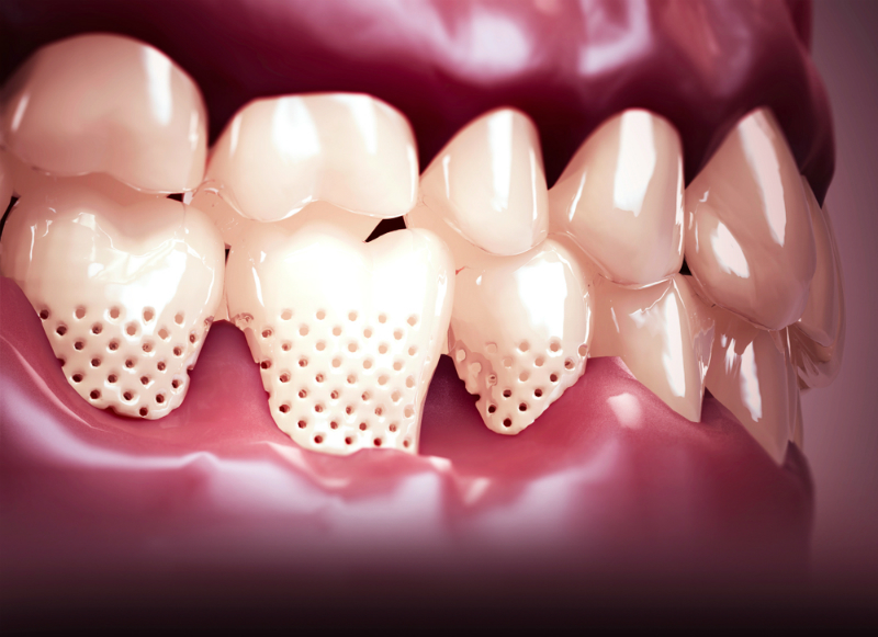 手遅れになる前に! 歯周病治療とはどのようなことをするの? | つくば ...
