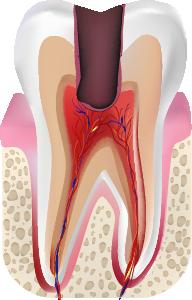 C3 歯の神経に達した虫歯