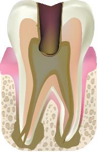 C4 歯根に達した末期の虫歯